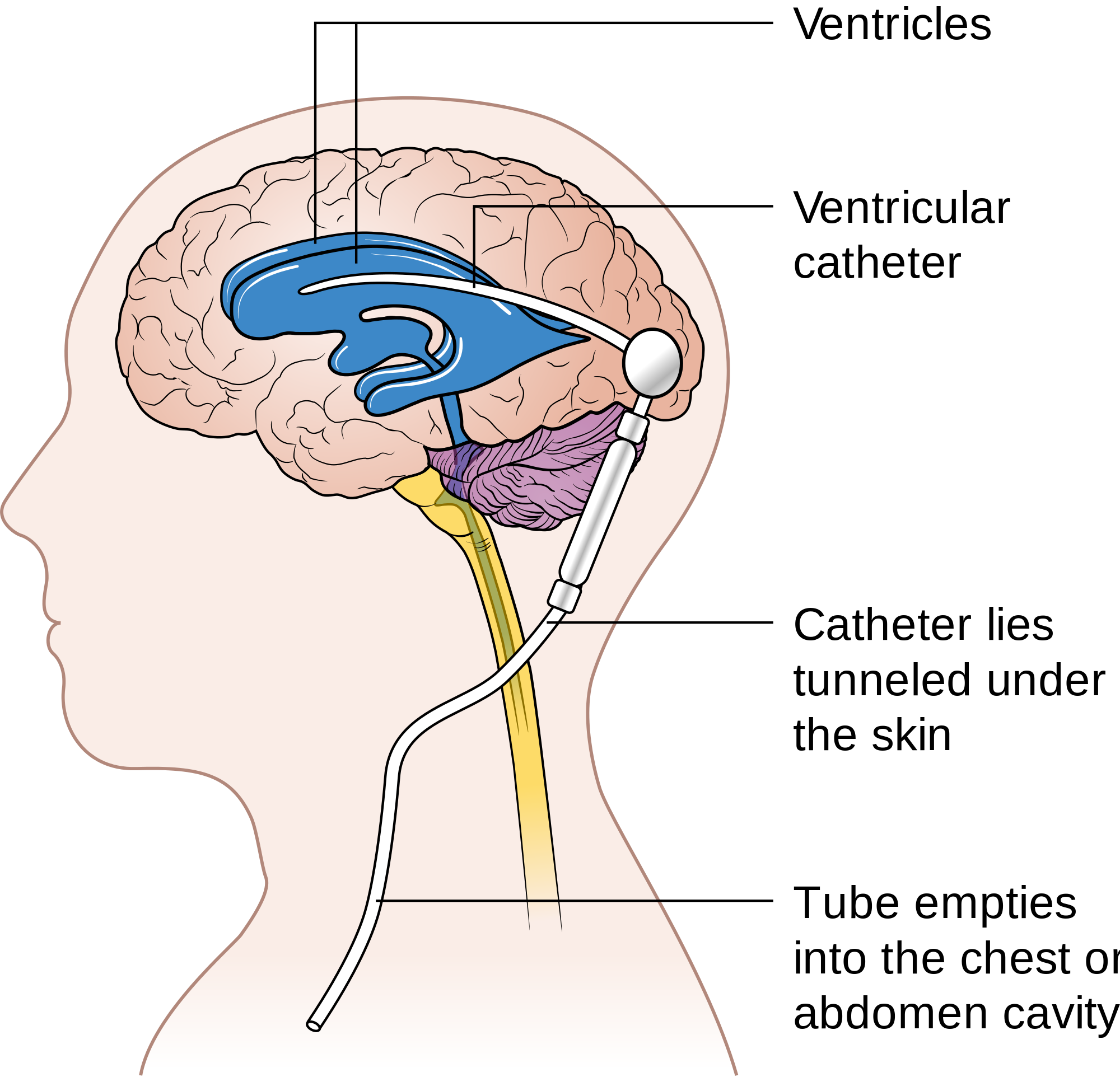 What are some symptoms of fluid on the brain?